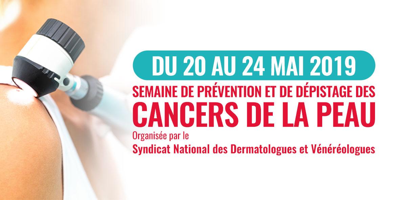 """Résultat de recherche d'images pour """"cancer de la peau journée mondiale 2019"""""""